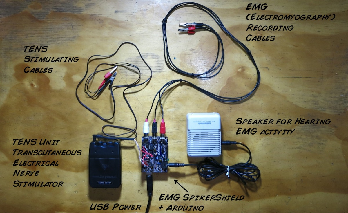 Byb Diy Emg Spikerbox Instructions Wiring Diagram Browse All Of The Electrical Human Interface Circuit Build