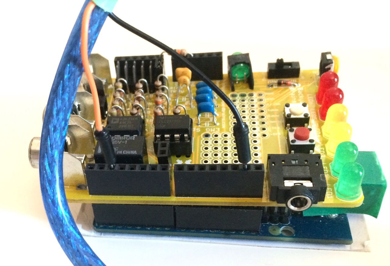 Controlling A Gripper Hand Summer 2015 Update Servo Motor Is Controlled By Pulses It Positions S Shaft Capture Emg Signals Produced Contracting Muscles Of The Forearm And Converts Them To Pmw Give Movement