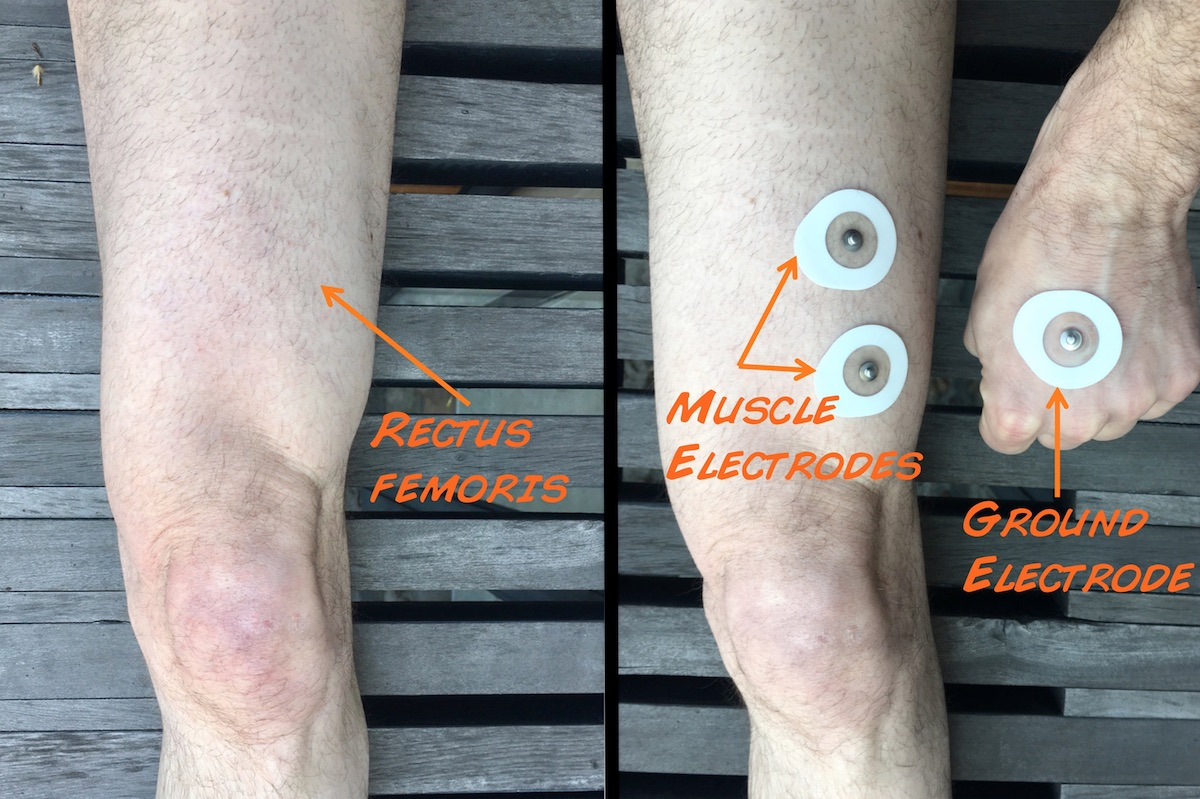 Experiment: The Patellar Reflex and Reaction