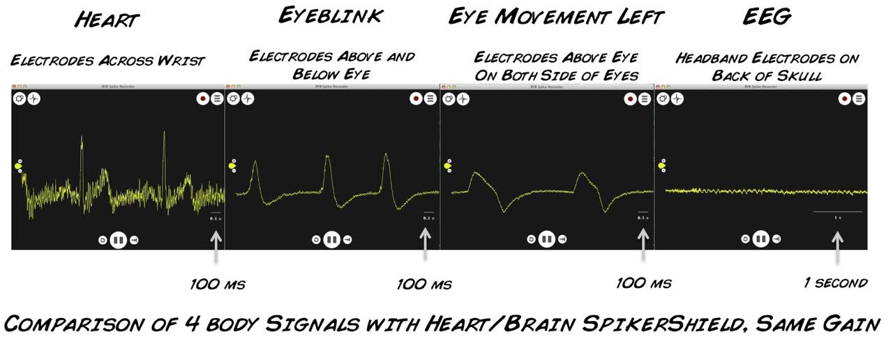 Experiment: EEG-Record from the Human Brain