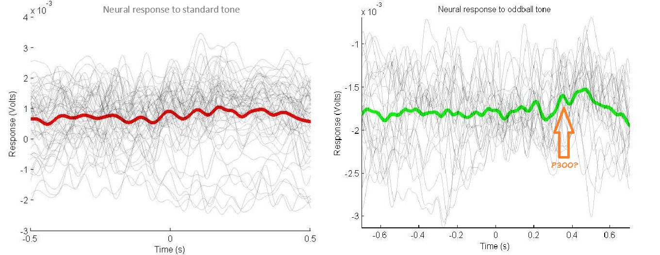 Experiment: The Consciousness Detector - EEG, Oddball Task, and P300