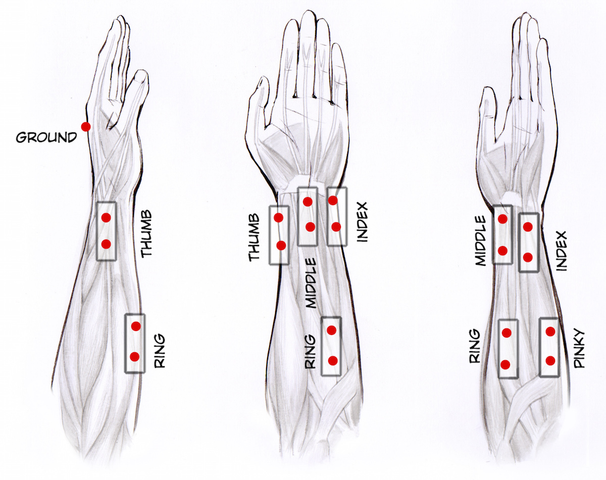 Carpal Tunnel Syndrome Quiz: Surgery, Symptoms &